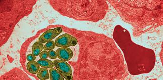 microorganismos patogênicos