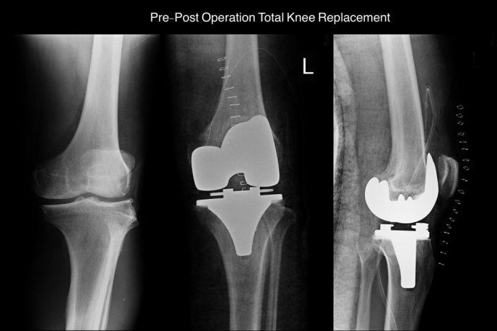 cartilagem artificial